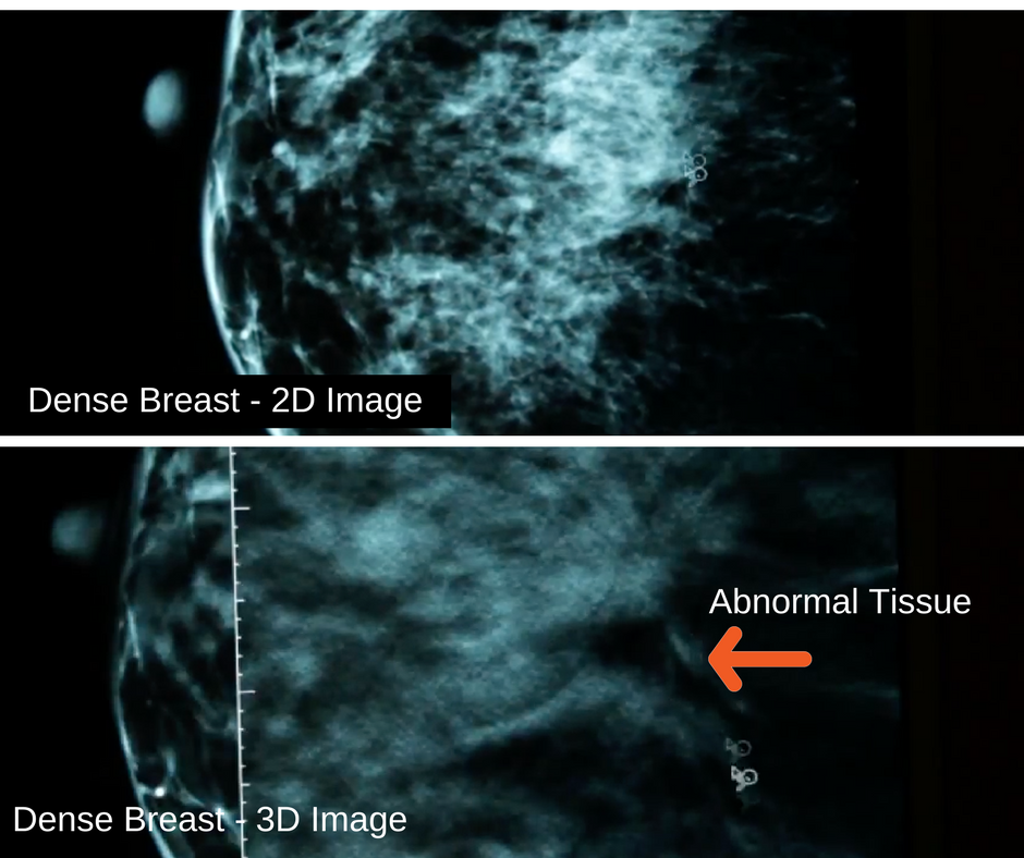 3D Mammography for Dense Breasts